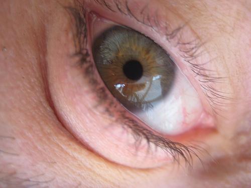 zdravé oči bez brýlí